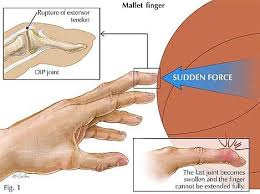 hurting my finger while playing basketball Finger injuries - causes, treatments and from football to basketball what if these treatment modalities fail to relieve your pain if your finger joint is.